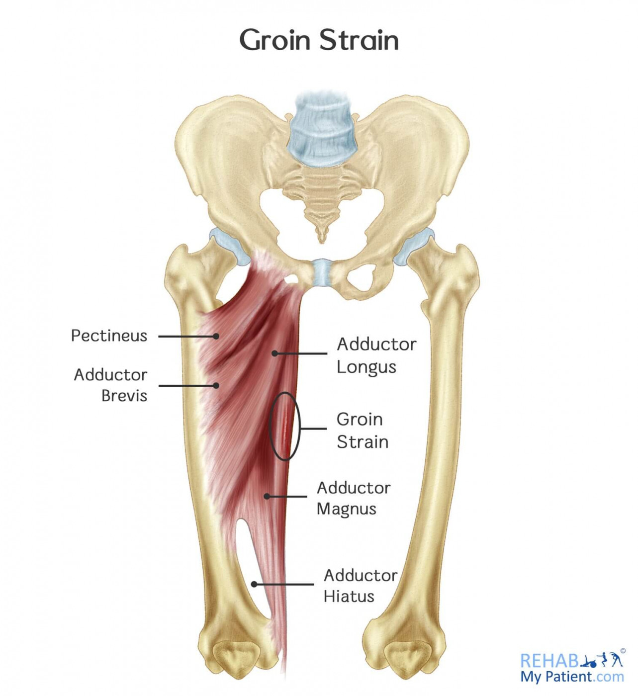 Diagram of muscles affected in groin strain