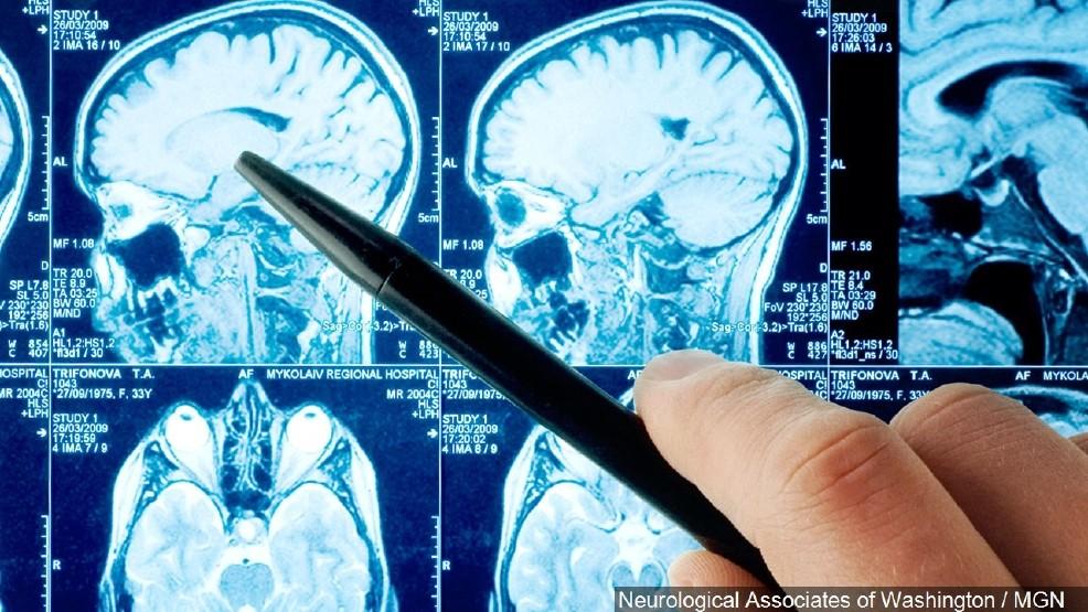 MRI of human brain with concussion