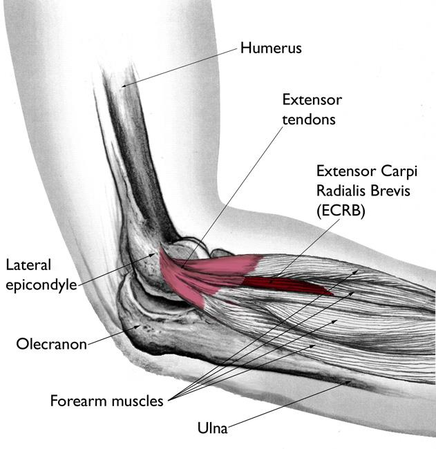 Diagram showing arm with tennis elbow